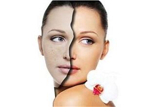 肌肤状态差的几大根源分析与应对方案