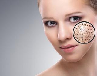 皮肤干燥别怪水质差 环境变化是主因