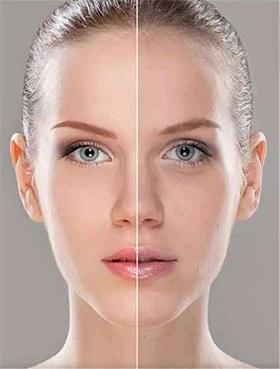 肤色暗沉美白没效果 找对原因才能对症下药