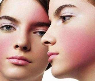 春季皮肤易过敏 皮肤专家提出十个建议